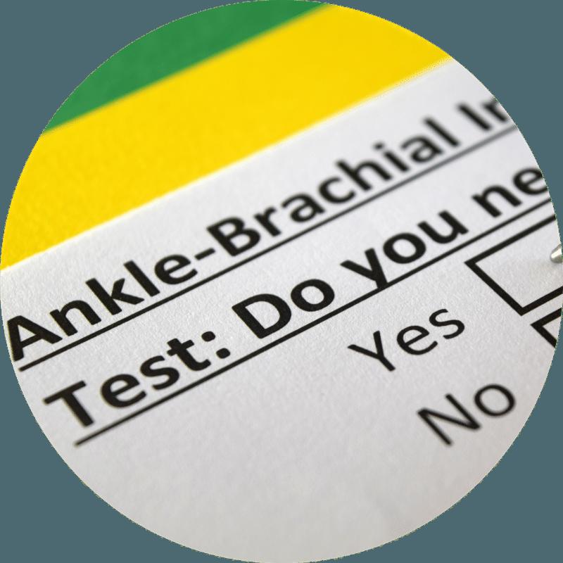 abi-test-sacramento-imaging-ankle-brachial