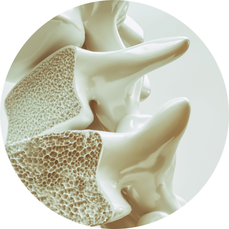 bone-density-test-sacramento-imaging
